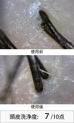 スカルプD 使用前後頭皮