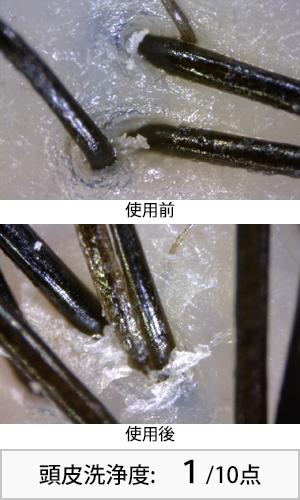 アロマキフィ 使用前後頭皮