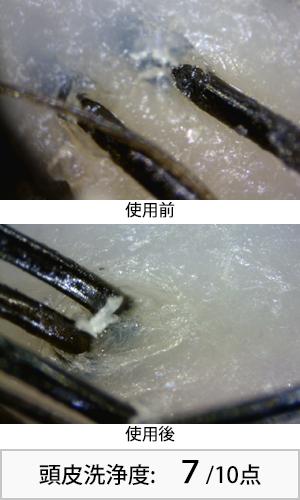 ハイビスカスシャンプー 使用前後頭皮