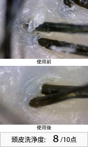 オーセル藻 使用前後頭皮