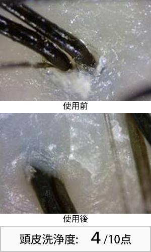 モイストダイアンスカルプ 使用前後頭皮