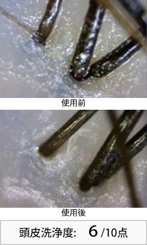 ジュレームシャイニーリペア 使用前後頭皮