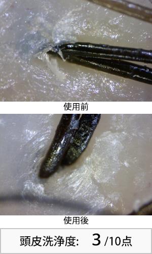 アジエンスメグリ 使用前後頭皮