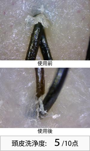 アハロバター 使用前後頭皮