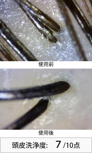 アハロバタースムースリペア 使用前後頭皮