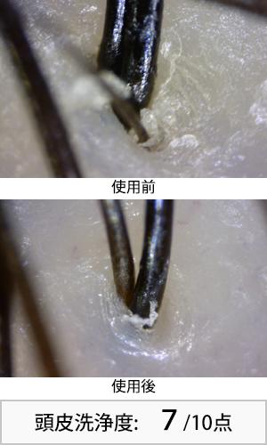 アミノメイソン 使用前後頭皮