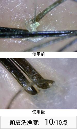 ウーマプレミアムシャンプー 使用前後頭皮