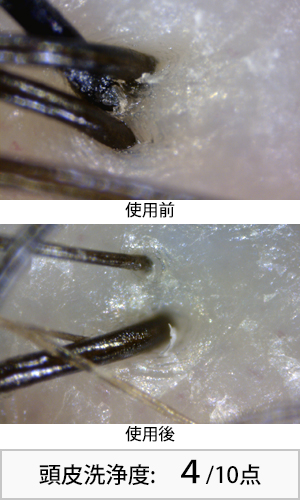 メリットピュアン 使用前後頭皮