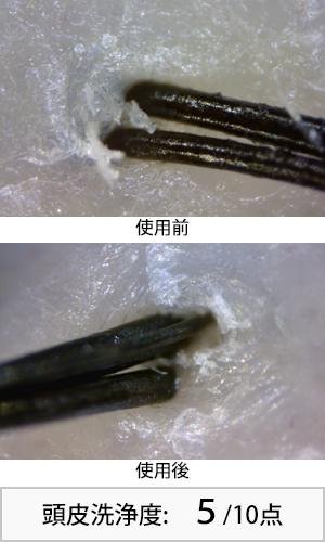 セグレタ 使用前後頭皮