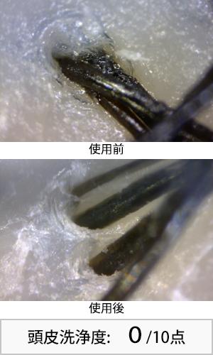 パンテーンミラクルズ 使用前後頭皮