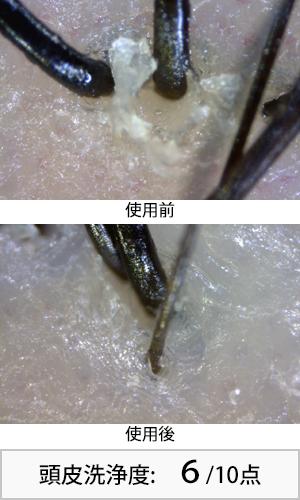 ソイアミモイスト 使用前後頭皮